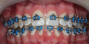 Braces - Metal Brackets