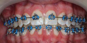 Braces - Metal Brackets