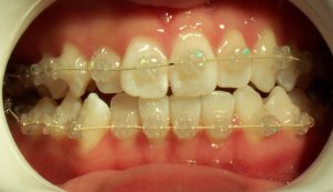 Braces - Tooth coloured brackets
