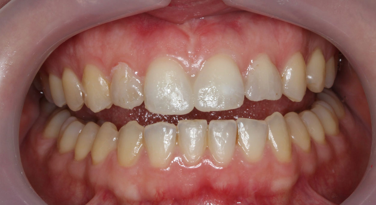 Cosmetic Dentistry Bonding Image After