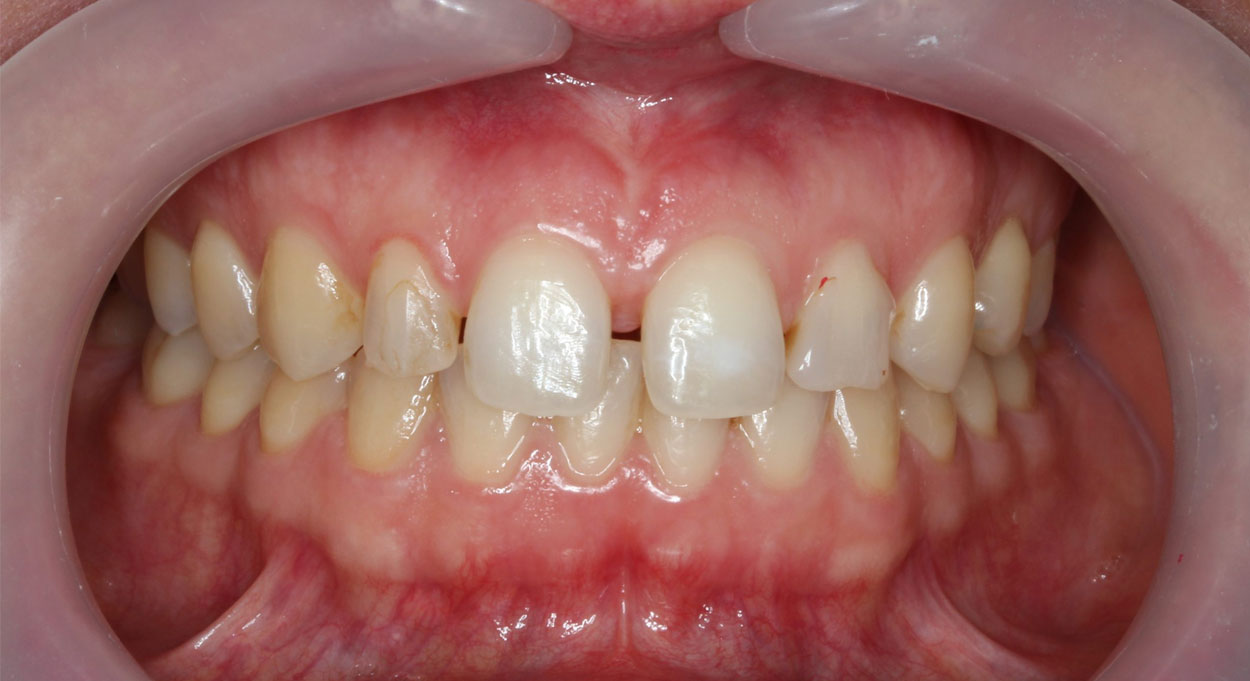 Cosmetic Dentistry Bonding Image Before