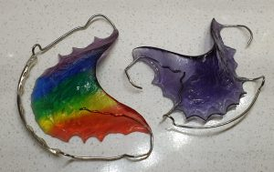 Removable retainer plates