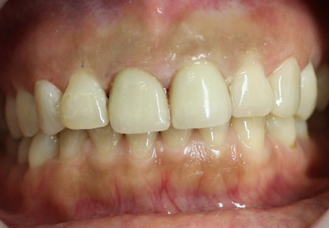 Anterior Crowns 1 – After