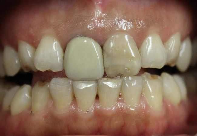 Anterior Crowns 1 – Before