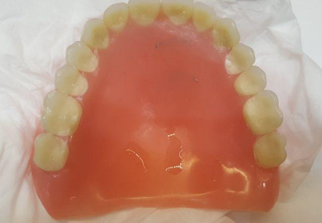 Denture Repair 1 – After