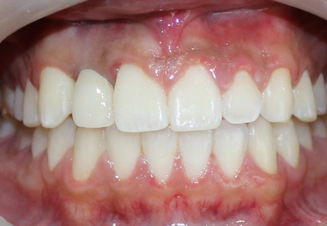 Implant And Braces After