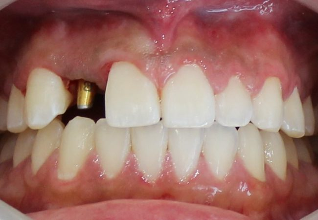 Implant And Braces During