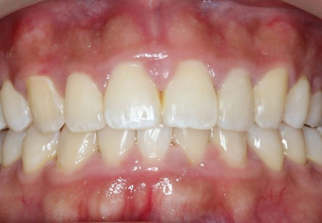 Ortho Case 1 – After