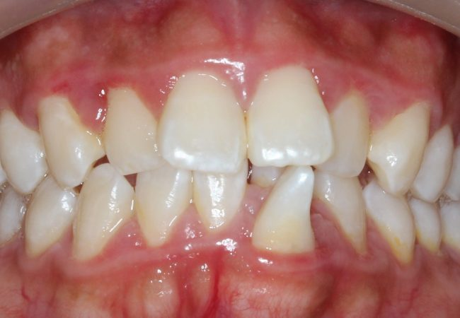 Ortho Case 1 – Before