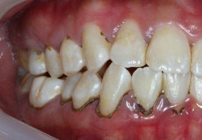 Teeth Cleaning Before