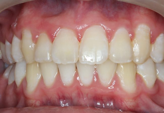 Ortho Case 2 – After