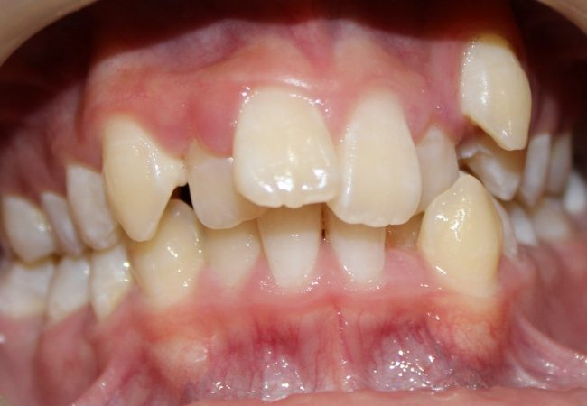 Ortho Case 2 – Before