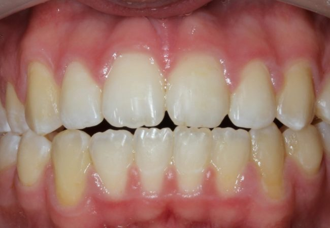 Ortho Case 3 – After