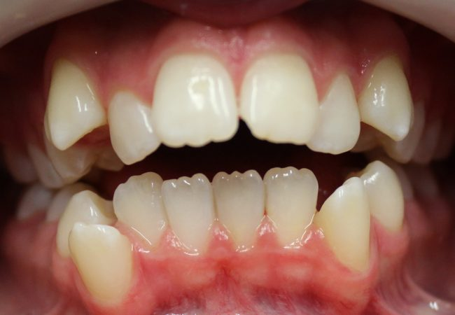 Ortho Case 3 – Before