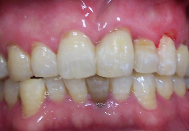 Ortho Case 4 – After