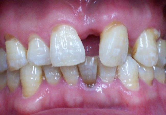 Ortho Case 4 – Before