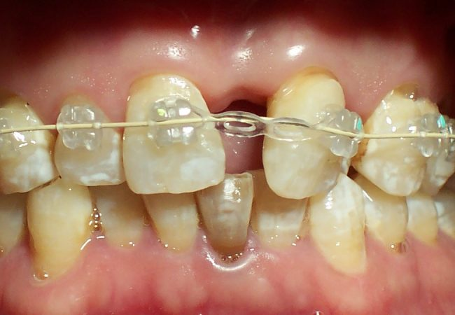 Ortho Case 4 – During