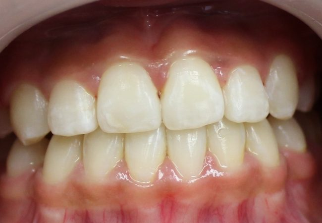 Ortho Case 6 – After