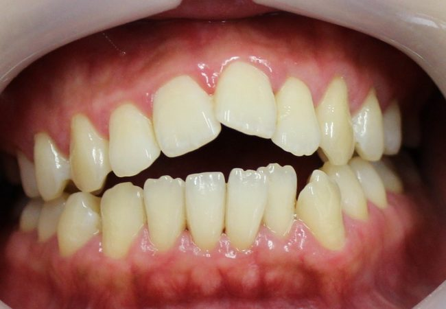 Ortho Case 7 – Before