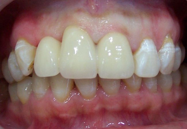 Anterior Crowns 2 – After