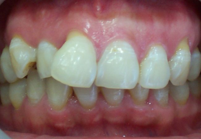 Anterior Crowns 2 – Before
