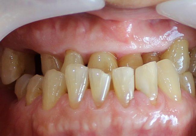 Underbite Before Treatment