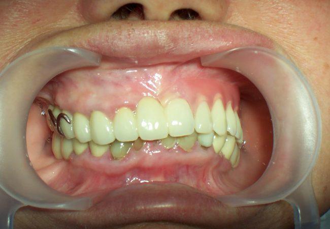 Flexible Pink Clasp Denture