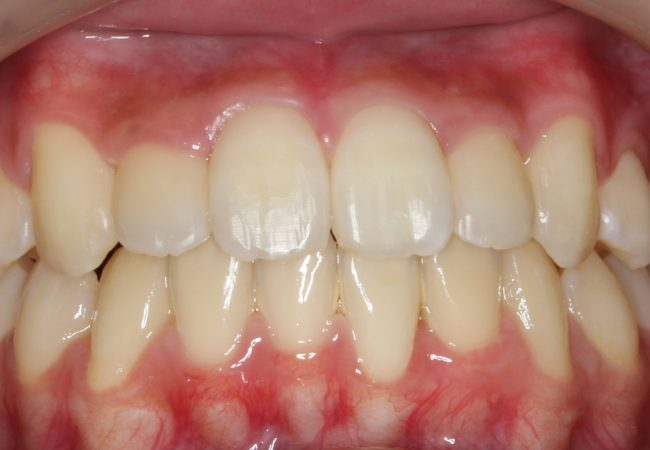 Ortho Case 8 - After Front
