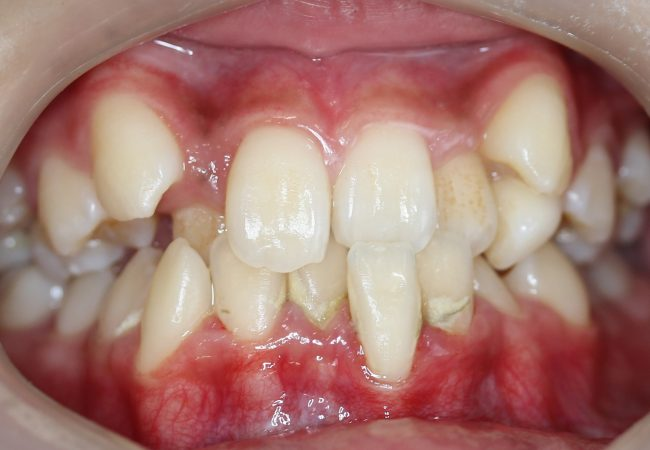 Ortho Case 8 - Before Front