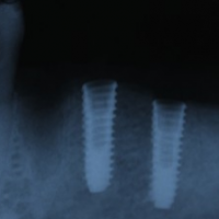 x-ray of placed implants